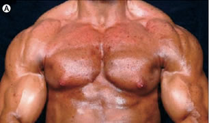 anabolic steroids injection spots